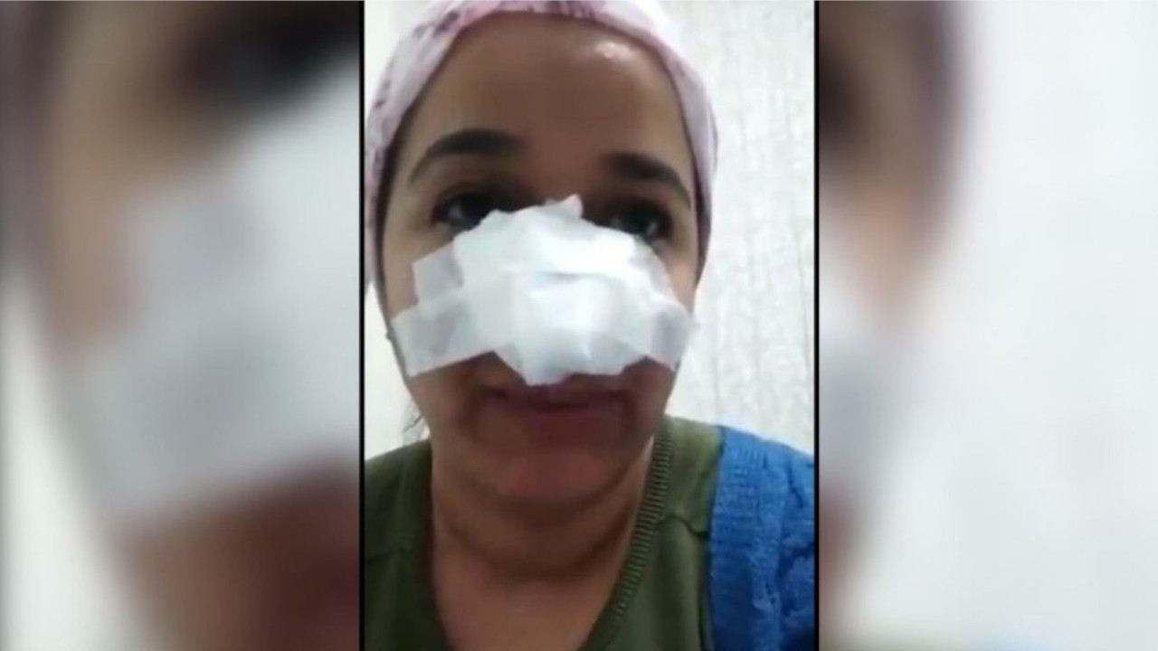 Turkish sergeant breaks Kurdish woman's nose after chasing her child