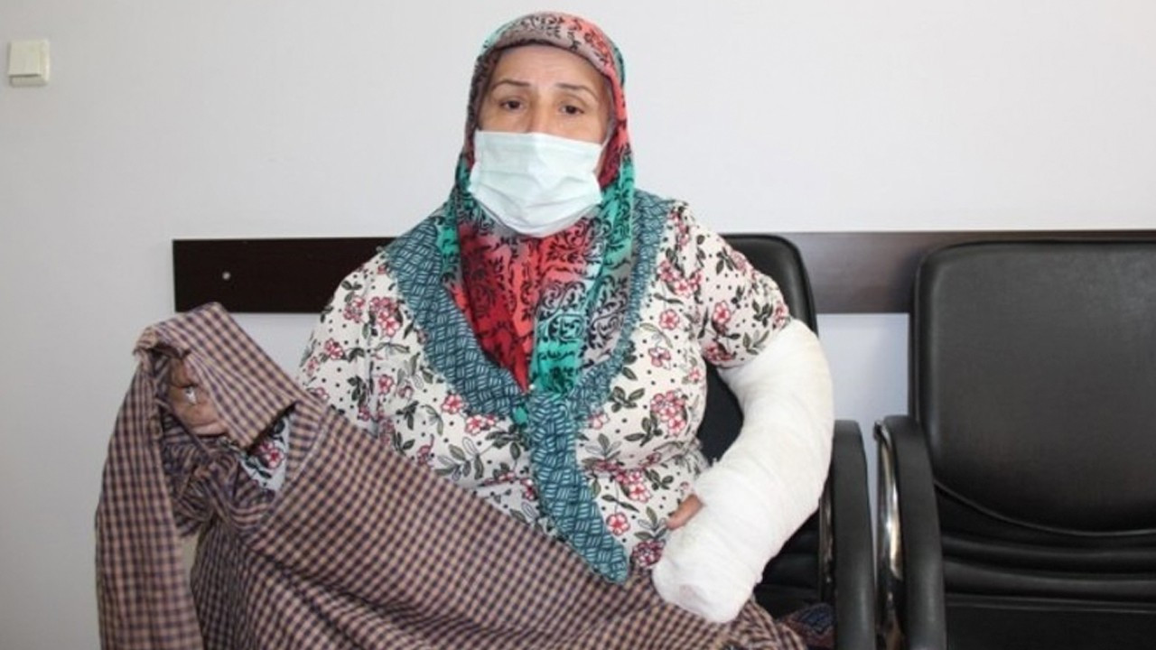 Turkish police breaks woman's teeth, arm while detaining her son