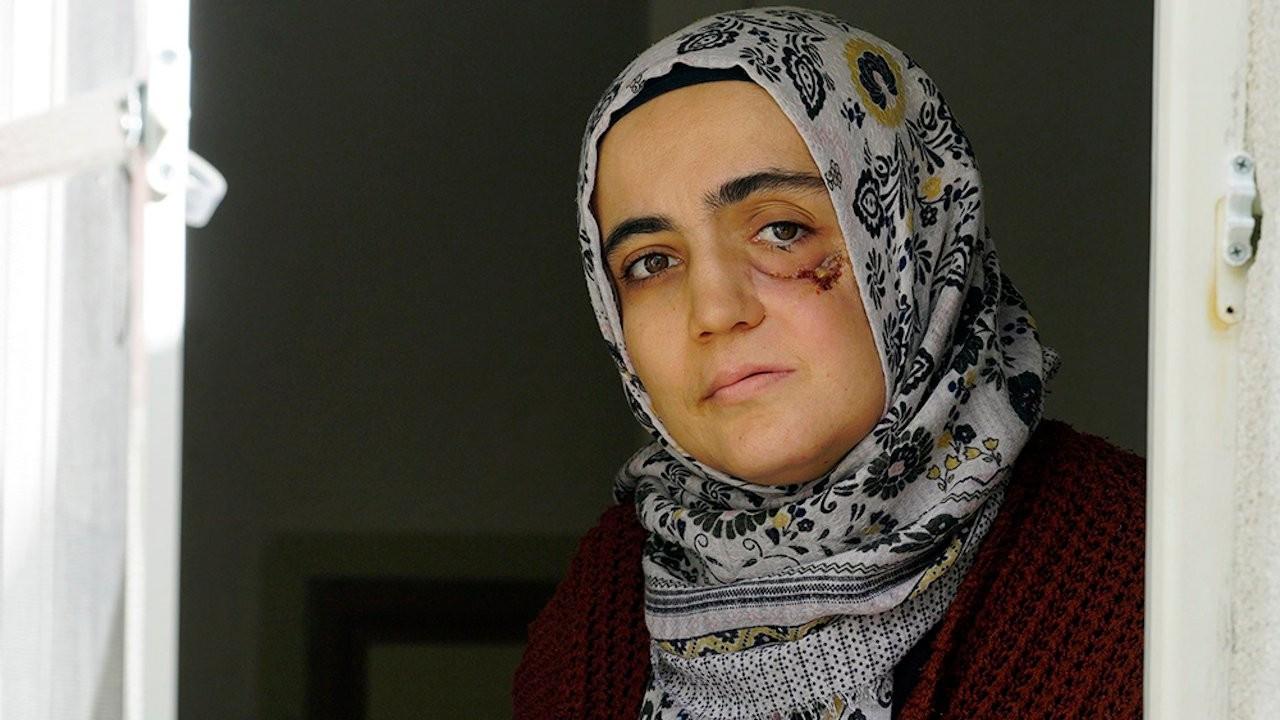 Turkish court arrests end-stage cancer patient over Gülen links
