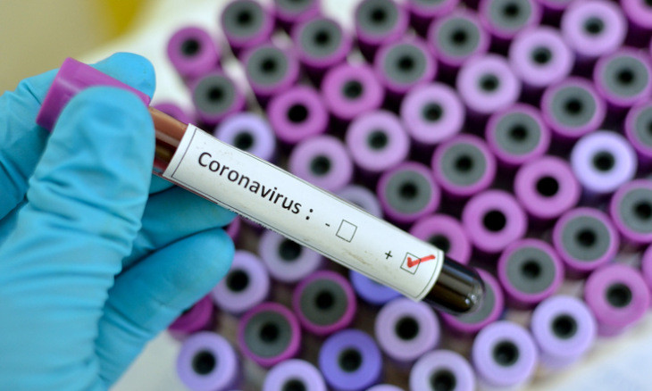 The science and politics of coronavirus