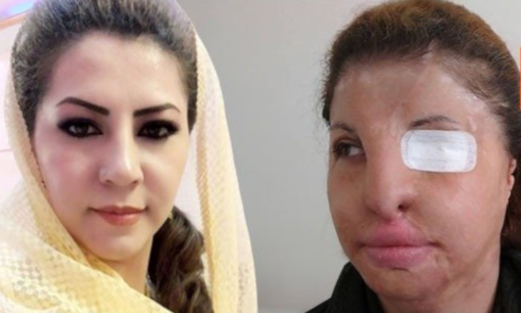 Afghani nurse badly injured in jihadist acid attack vows to fight for women's rights