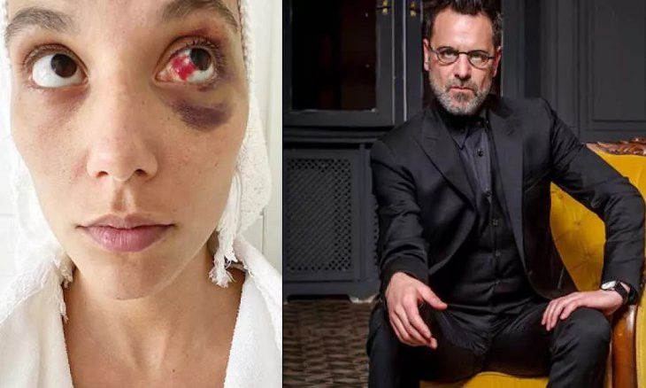 Over 100 scriptwriters urge joint stance against Ozan Güven after Turkish actor beats girlfriend