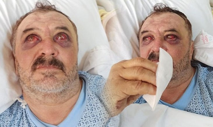 Man thrown off helicopter in southeast Turkey reveals scope of state violence