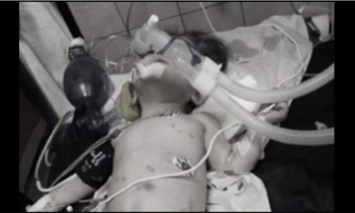 One-year-old toddler tortured to death in Istanbul